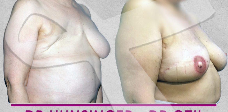 grand dorsal en reconstruction mammaire après cancer du sein avec ou sans prothèse mammaire à Paris