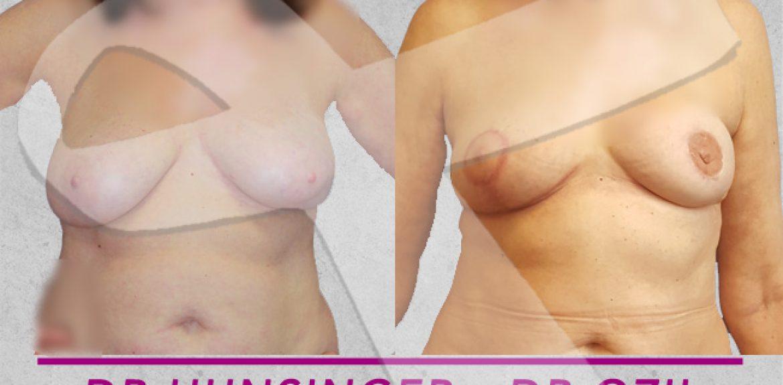 le PAP pour une reconstruction mammaire après mastectomie permet une reconstruction naturelle sans prothèse mammaire avec la cuisse à Paris