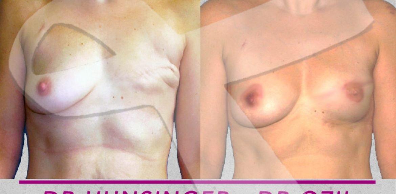 reconstruction mammaire sans prothèse après mastectomie mammaire par gracilis à Paris